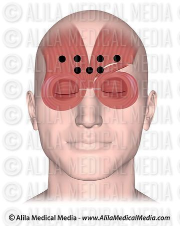 Points d'injection de Botox pour le traitement de la migraine .
