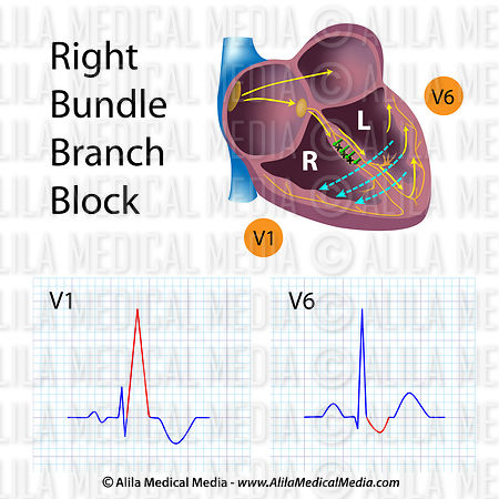 Right bundle branch blocks (RBBB)