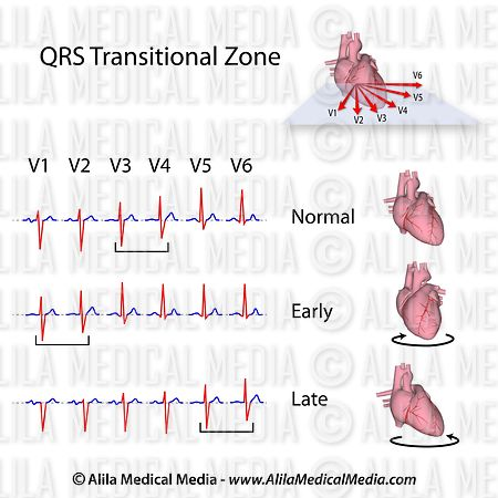 QRS transitional zone in chest leads