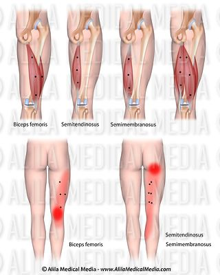Trigger points and referred pain for the hamstrings