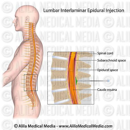 Lumbar interlaminar epidural injection