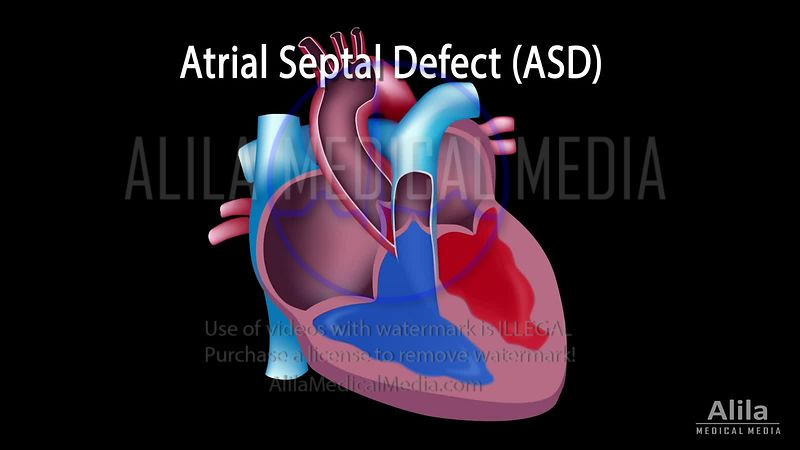 Atrial septal defects (ASDs) NARRATED animation