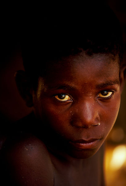 Angola - Luanda - A boy in a camp for IDP's