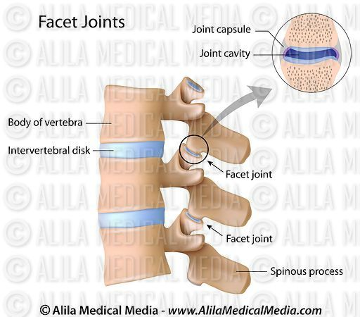Joints de facette