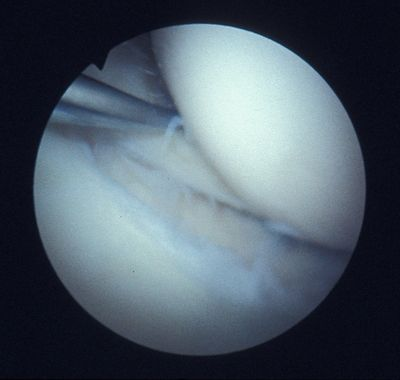 Meniscal tear showing torn piece pulled by a probe.