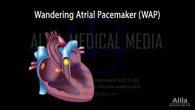 Wandering atrial pacemaker and Multifocal atrial tachycardia NARRATED animation