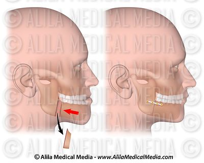 Corrective surgery for protruding lower jaw