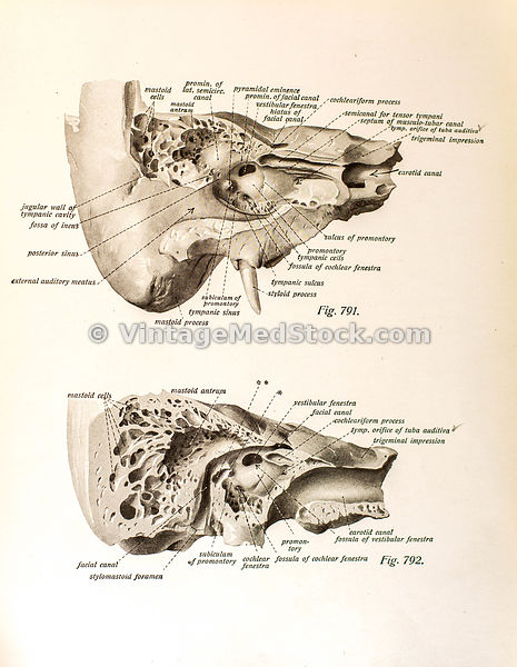 Anatomy of Human Hearing