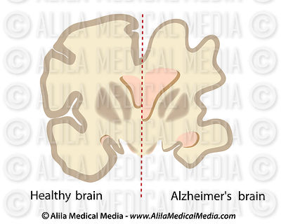 Healthy Brain Vs. Alzheimer's Brain