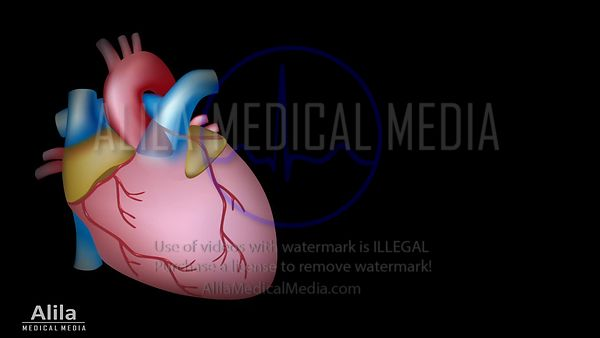 Myocardial infarction and coronary angioplasty video NARRATED.