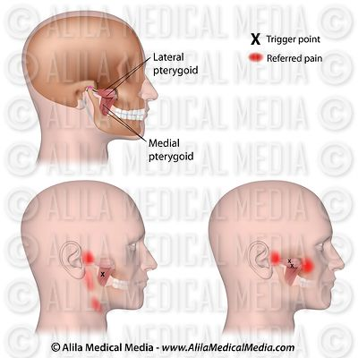 Trigger points and referred pain for the pterygoid muscles