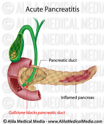 Acute Pancreatitis caused by gallstone