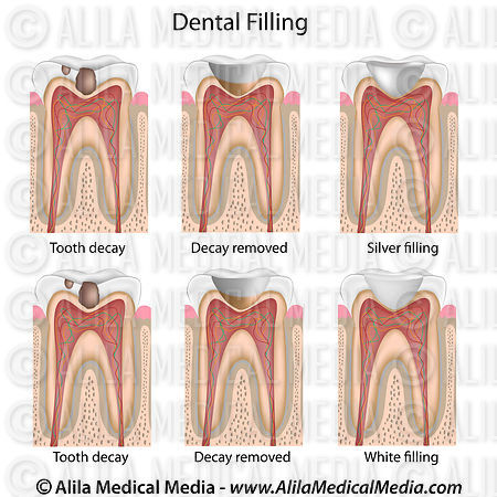 Tooth filling procedures diagram.