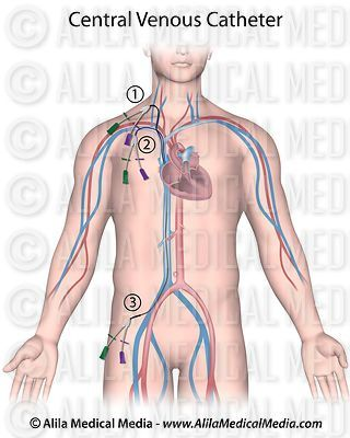 Sites of central venous catheter