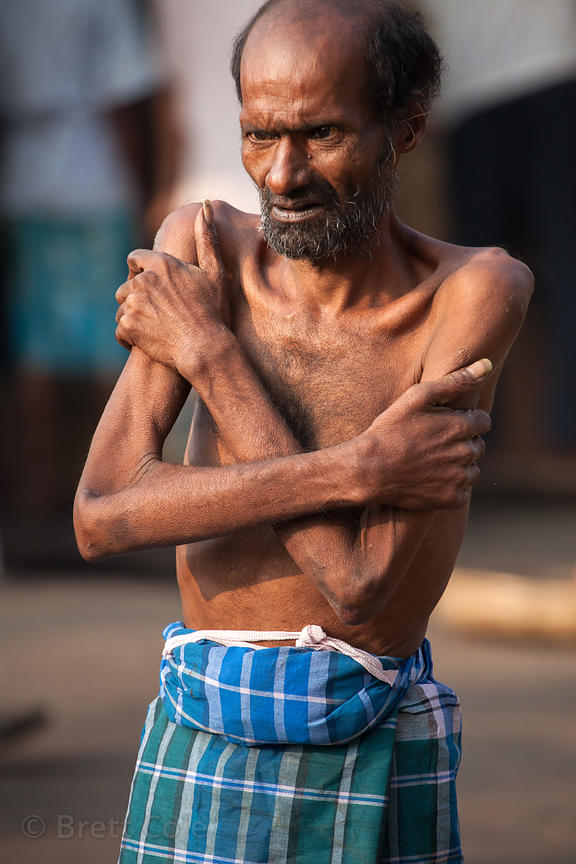 An emaciated man walking in Newmarket Kolkata, India. Although malnutrition is widespread in India, it's uncommon to see some...