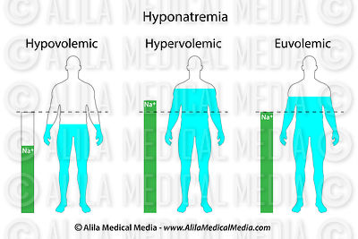 Types of hyponatremia