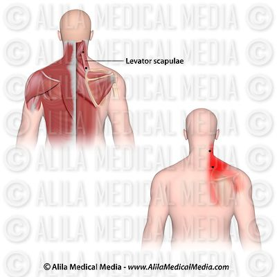 Trigger points and referred pain for the levator scapulae