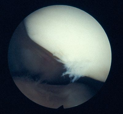 Patella showing damage to the chondral surface