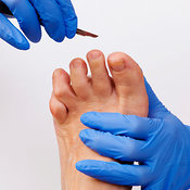Chiropody/podiatry