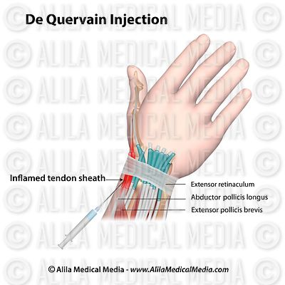 De Quervain's injection