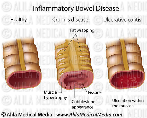 Inflammatory bowel disease, labeled diagram.