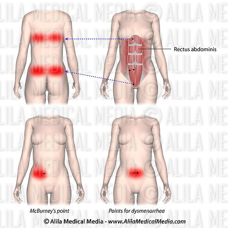 Trigger points and referred pain for rectus abdominis