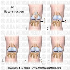 ACL reconstruction surgery unlabeled diagram.
