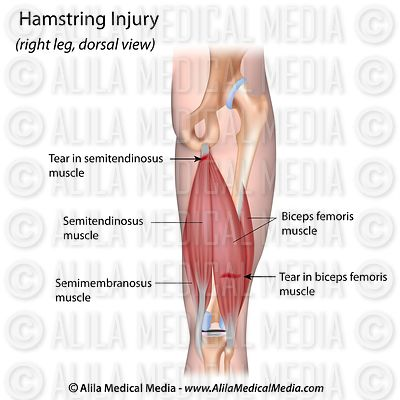 Hamstring Injury labeled.