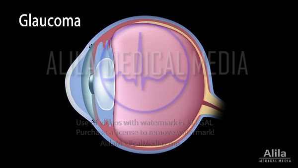 Glaucoma tutorial complete NARRATED video.