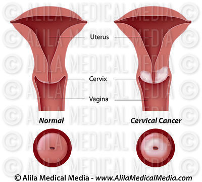 Cervical cancer, labeled diagram.