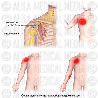 Trigger points and referred pain for the pectoralis minor muscle