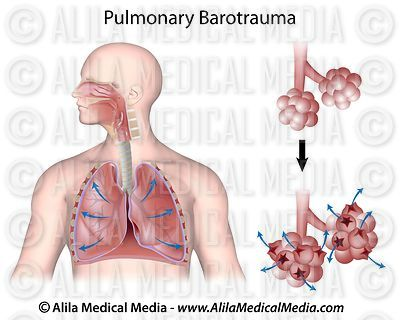 Pulmonary barotrauma diagram.