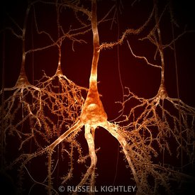 Neurons; pyramidal cells #1d