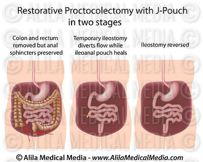 Restorative proctocolectomy with J-pouch  in two stages
