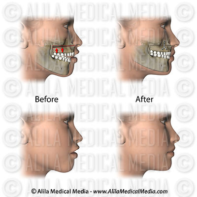 Corrective jaw surgery for open bite